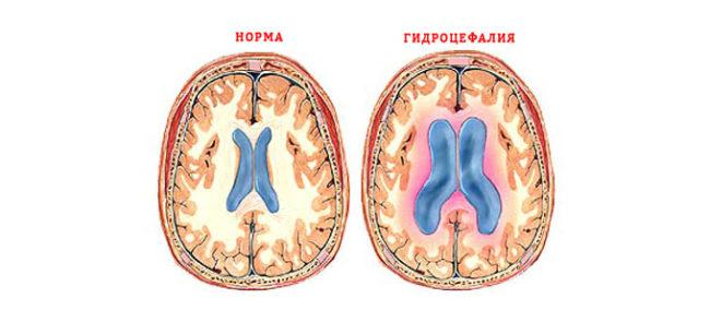 Лечение гидроцефалии