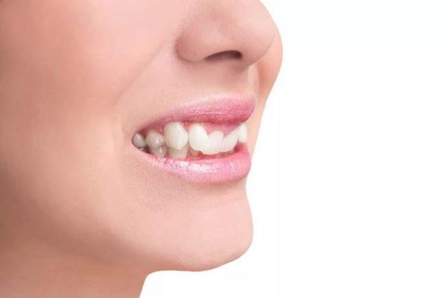 неправильное смыкание зубов - первый признак неправильного прикуса